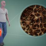 Спрете развитието на остеопорозата с правилно хранене и физиотерапия
